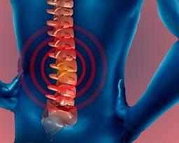 tratamiento de la hernia discal